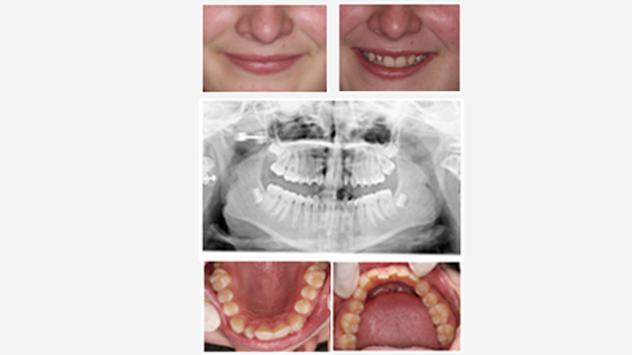 Root Canal Specialists, Teeth Whitening, Wisdom Tooth